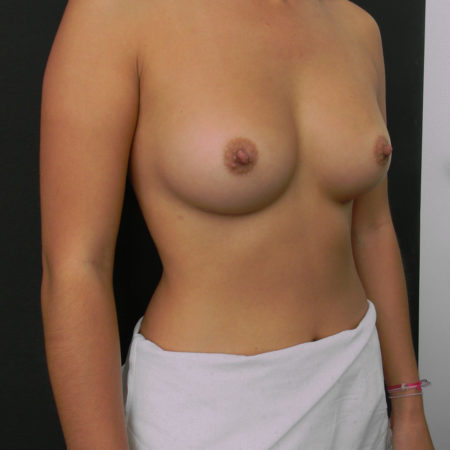 порно фото различных видов женской груди - 9