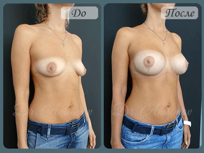 Программа просветить одежду до сисек, смотреть порнуху фотографии